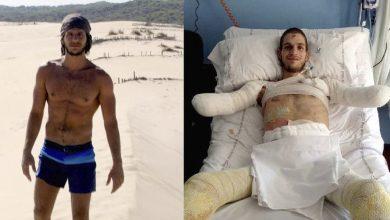 Photo of Amputan a un italiano los brazos y las piernas por un diagnóstico erróneo
