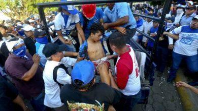 Photo of Aumentan a 11 los muertos y 79 los heridos durante manifestación en Nicaragua