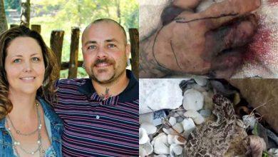 Photo of El hombre que casi muere tras ser mordido por la cabeza de una serpiente que había decapitado