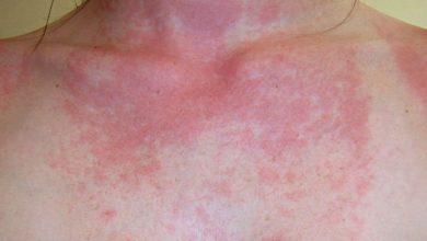 Photo of ¿Qué es tener alergia al sol?