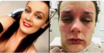 Photo of Joven casi pierde la vista, tras explotar en su rostro un huevo calentado