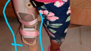 Photo of Madre pide ayuda para comprar prótesis a su hija de tres años.