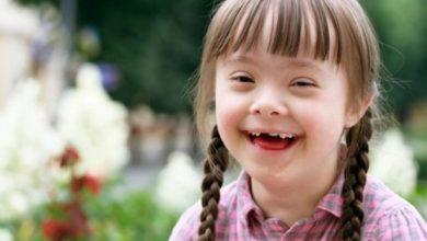 Photo of Día Mundial del Síndrome de Down.