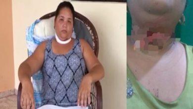 Photo of Mujer que casi pierde la vida al enredarse hilo de chichigua en Salcedo narra lo sucedido.